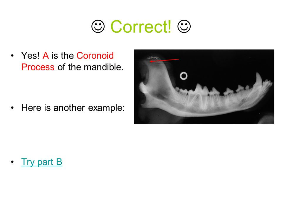 Correct!  Yes! A is the Coronoid Process of the mandible.