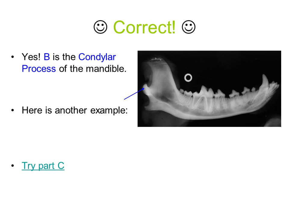  Correct!  Yes! B is the Condylar Process of the mandible.