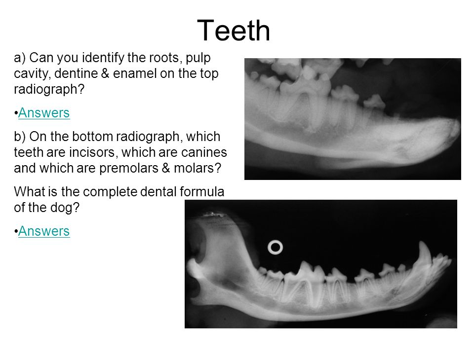 Teeth a) Can you identify the roots, pulp cavity, dentine & enamel on the top radiograph Answers.
