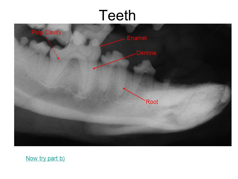 Teeth Pulp Cavity Enamel Dentine Root Now try part b)