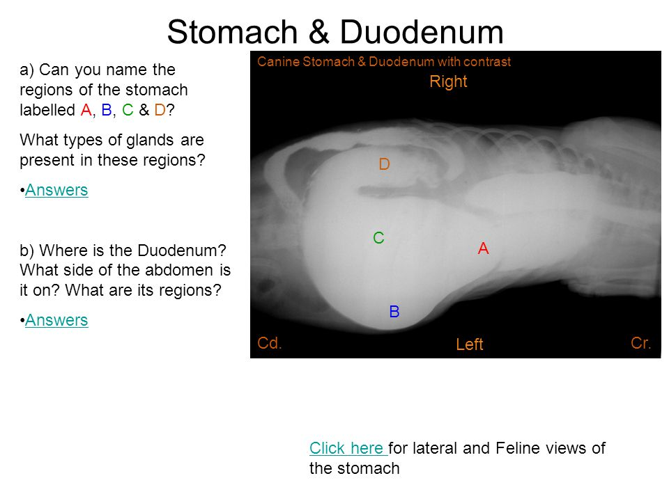 Stomach & Duodenum Canine Stomach & Duodenum with contrast. a) Can you name the regions of the stomach labelled A, B, C & D