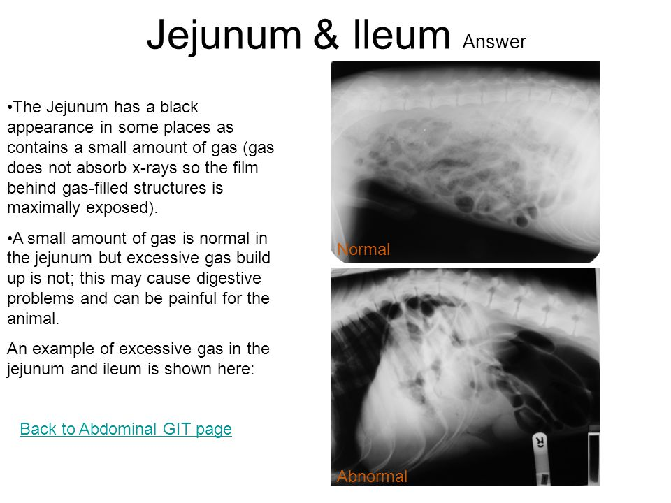 Jejunum & Ileum Answer