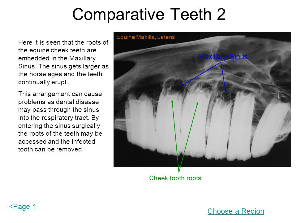 Comparative Teeth 2 Maxillary Sinus <Page 1 Choose a Region