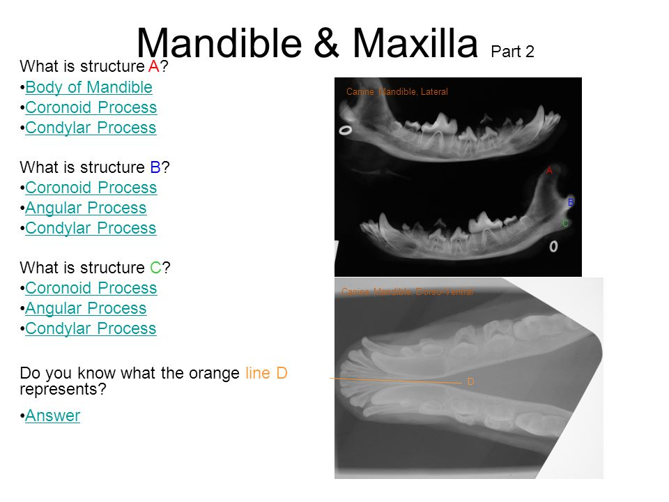 Mandible & Maxilla Part 2