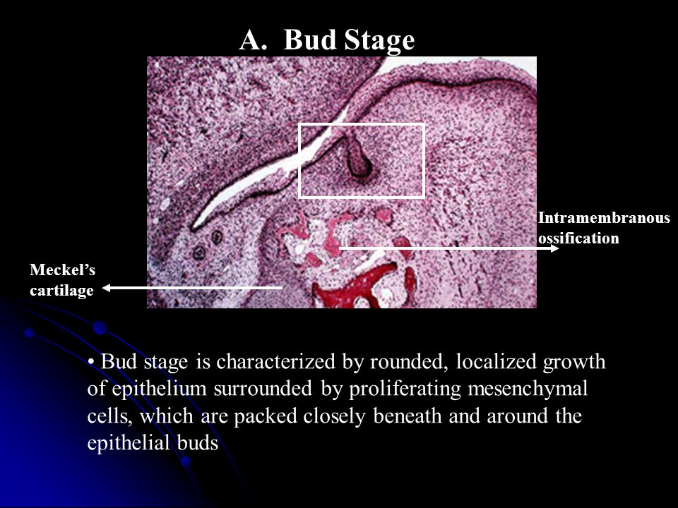 A. Bud Stage Intramembranous. ossification. Meckel's. cartilage.