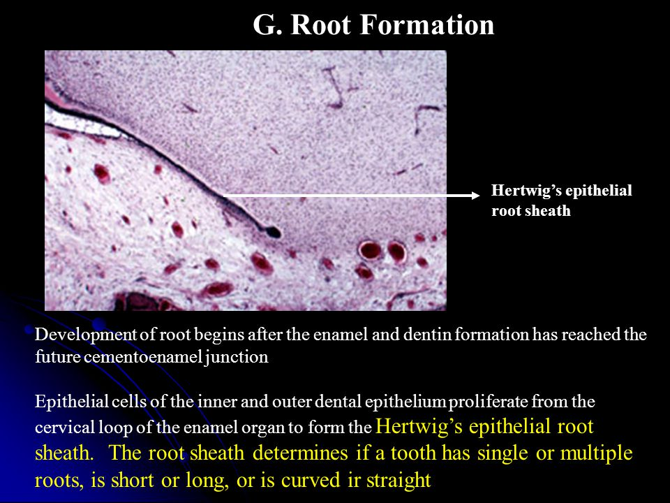 G. Root Formation Hertwig's epithelial. root sheath.