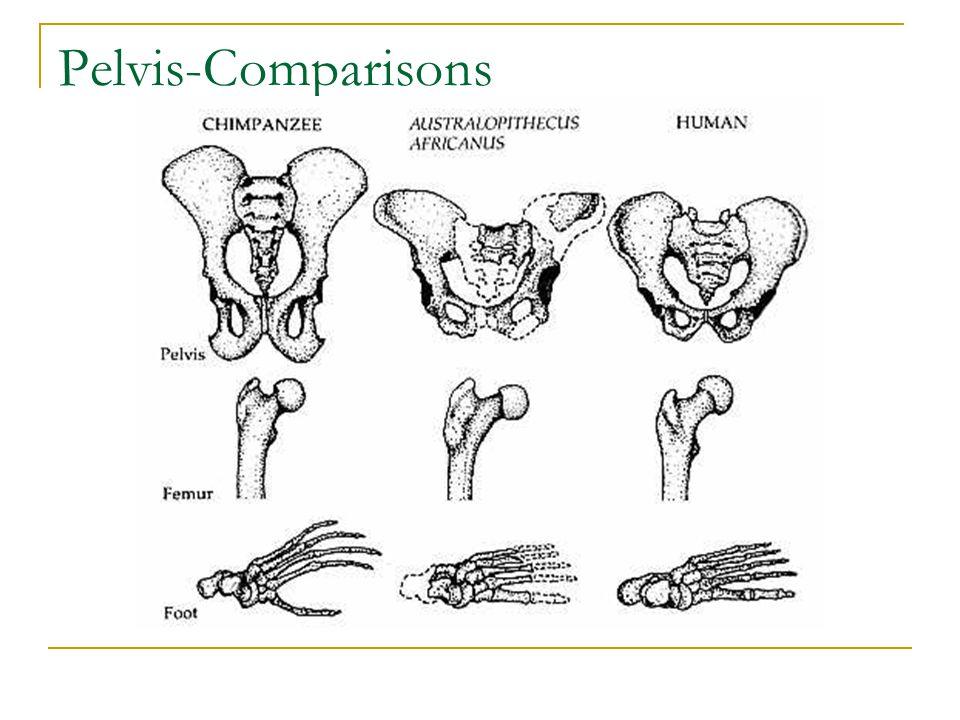 Pelvis-Comparisons