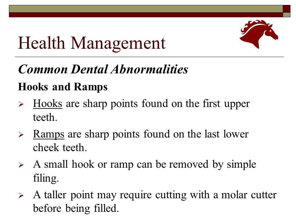 Health Management Common Dental Abnormalities Hooks and Ramps