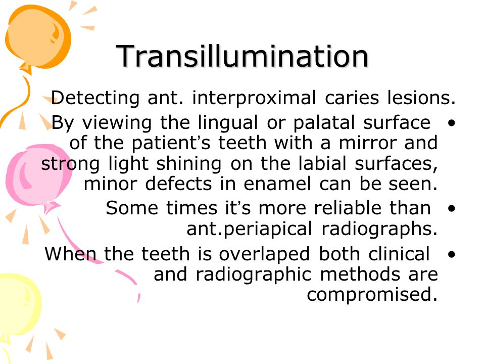 Transillumination Detecting ant. interproximal caries lesions.