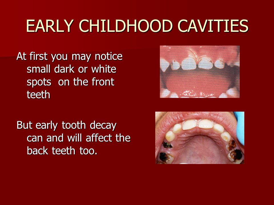 EARLY CHILDHOOD CAVITIES