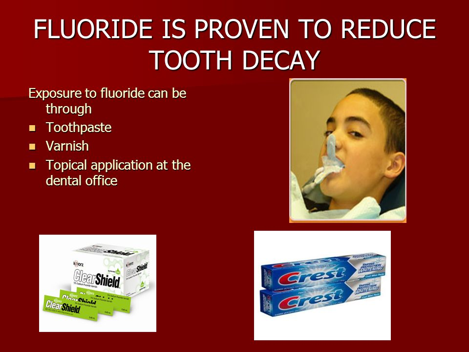 FLUORIDE IS PROVEN TO REDUCE TOOTH DECAY