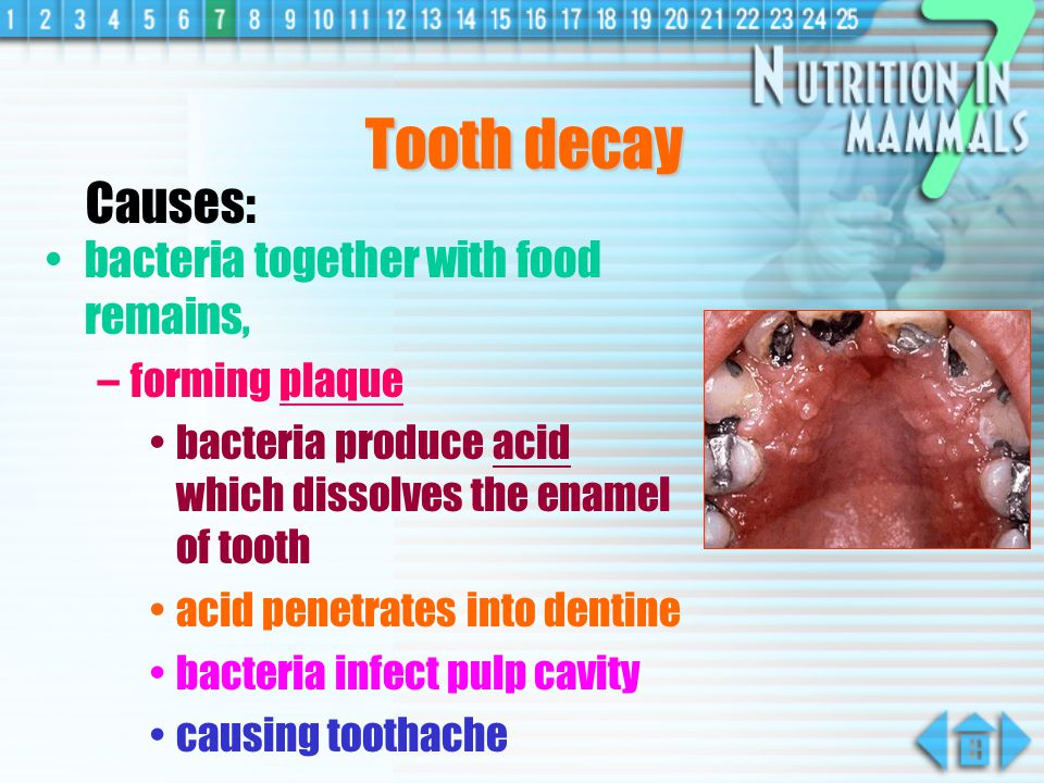 Tooth decay Causes: bacteria together with food remains,