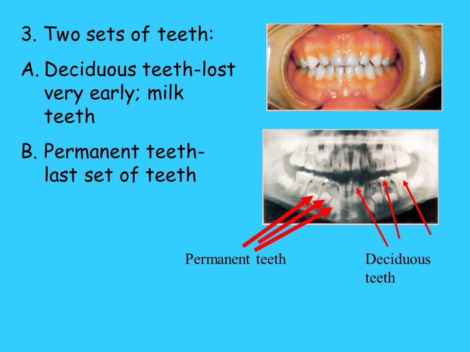 Deciduous teeth-lost very early; milk teeth