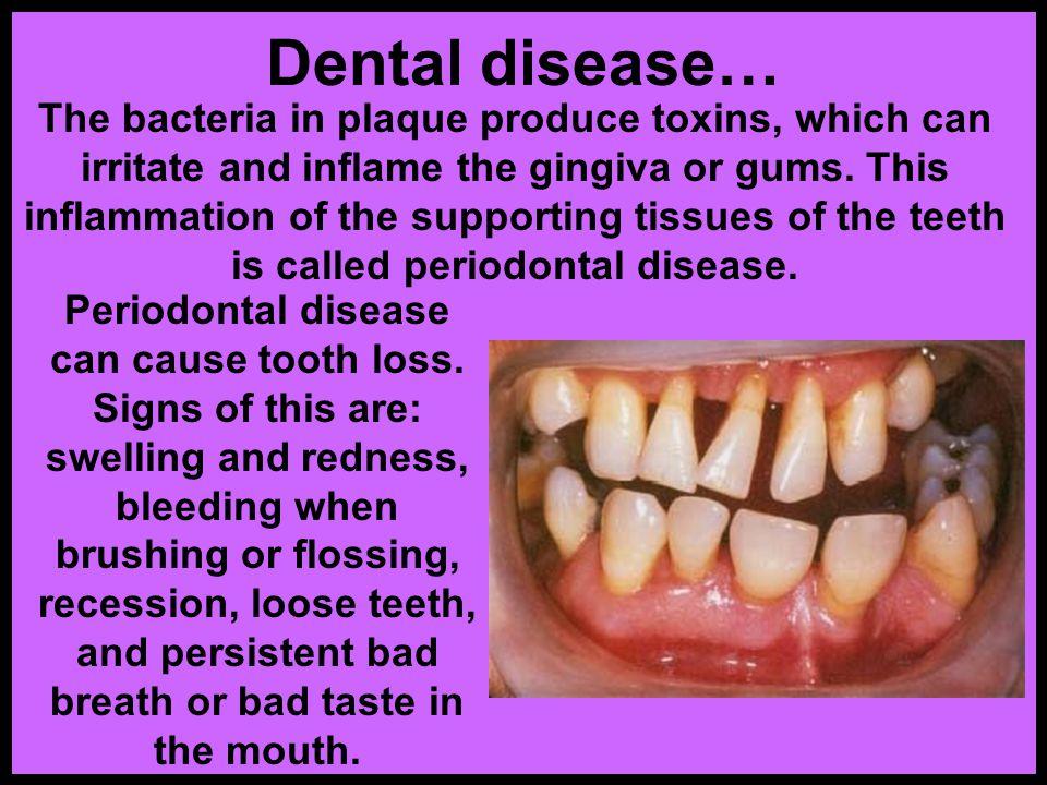 Dental disease…