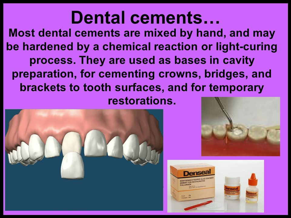 Dental cements…