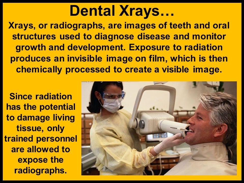 Dental Xrays…