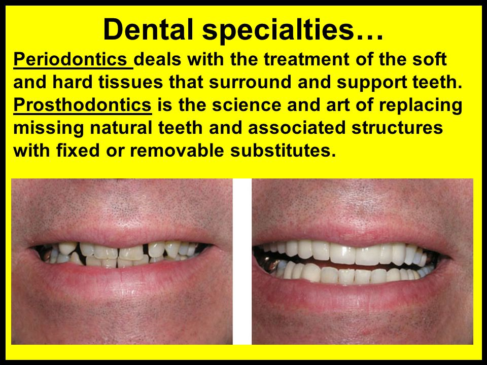 Dental specialties… Periodontics deals with the treatment of the soft and hard tissues that surround and support teeth.