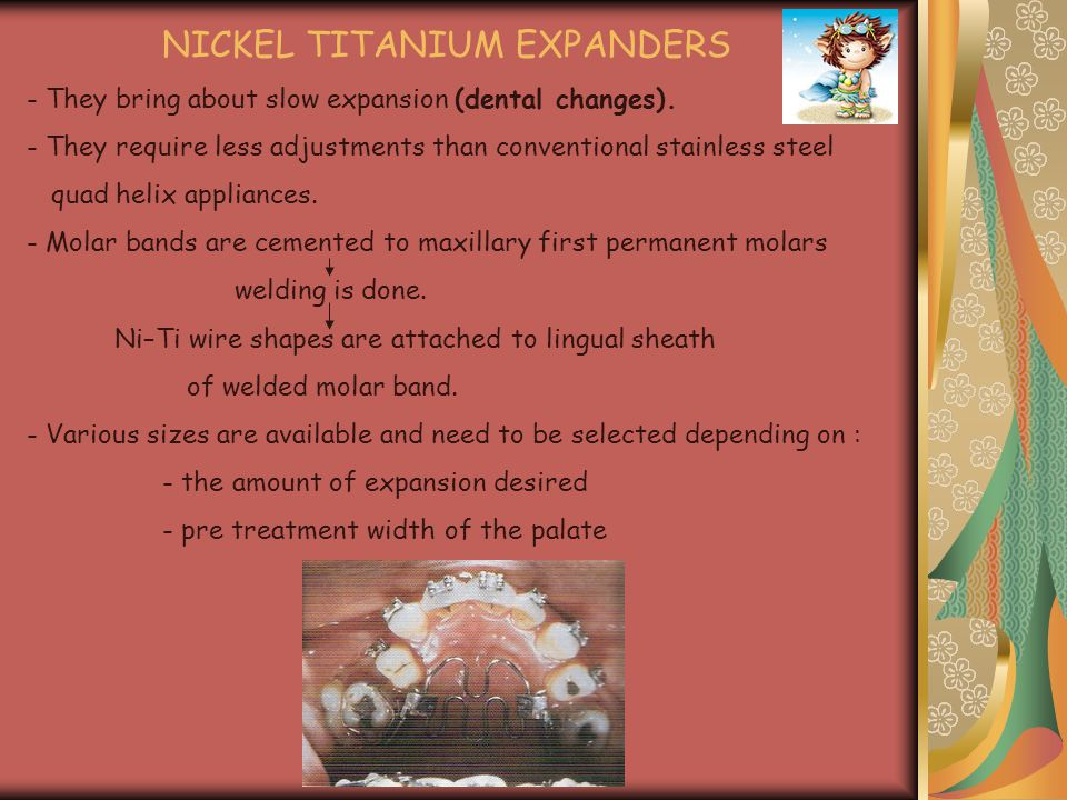 NICKEL TITANIUM EXPANDERS