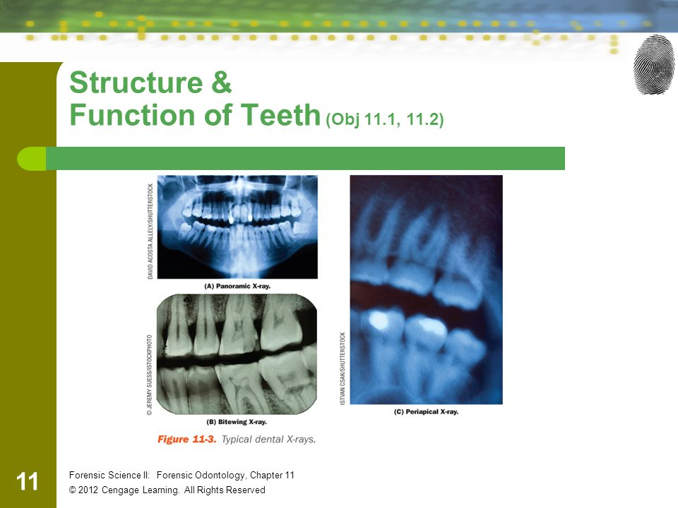 Structure & Function of Teeth (Obj 11.1, 11.2)