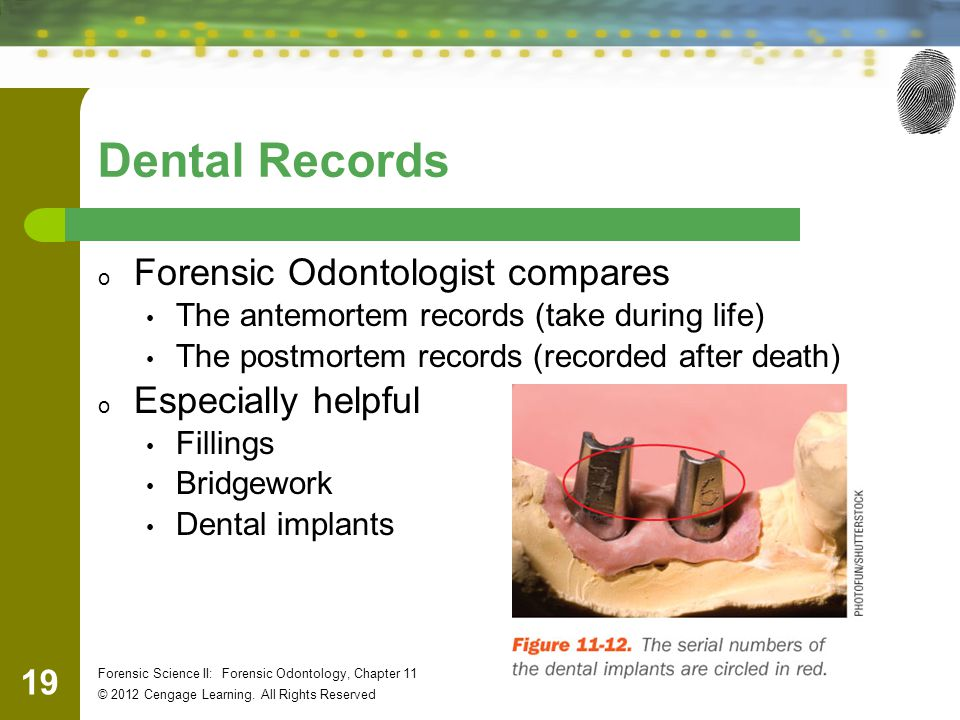Dental Records Forensic Odontologist compares Especially helpful