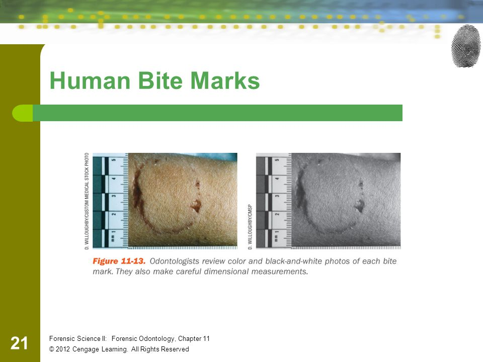 Human Bite Marks Forensic Science II: Forensic Odontology, Chapter 11