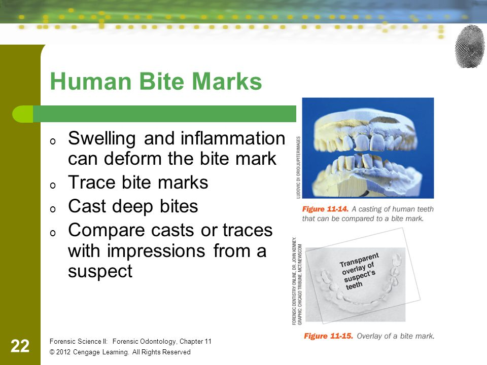 Human Bite Marks Swelling and inflammation can deform the bite mark