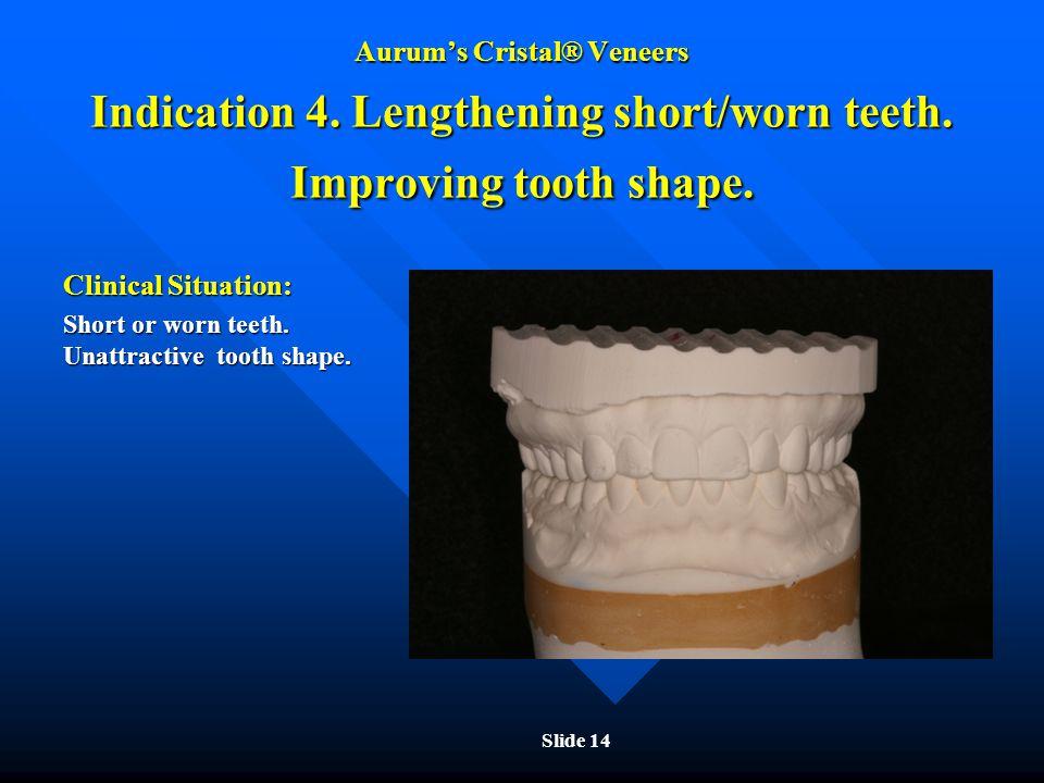 Aurum's Cristal® Veneers Indication 4. Lengthening short/worn teeth