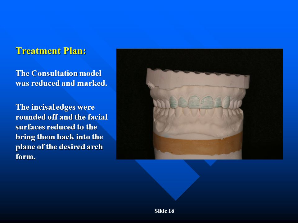 Treatment Plan: The Consultation model was reduced and marked.