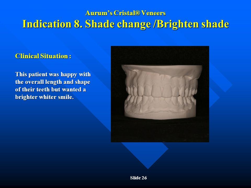 Aurum's Cristal® Veneers Indication 8. Shade change /Brighten shade