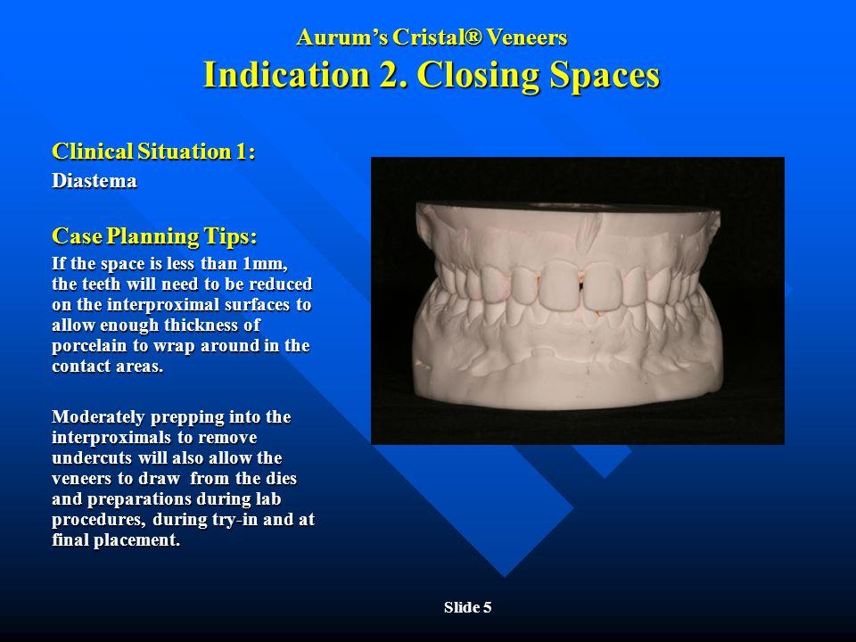 Aurum's Cristal® Veneers Indication 2. Closing Spaces