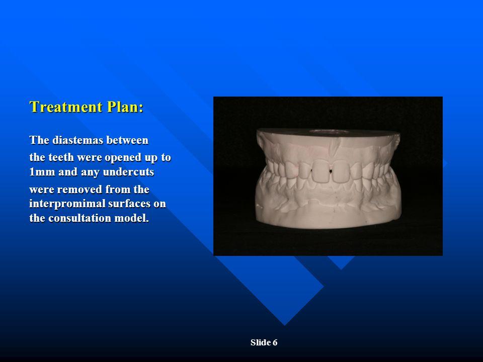 Treatment Plan: The diastemas between