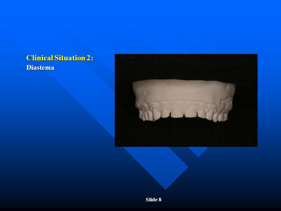 Clinical Situation 2: Diastema Slide 8
