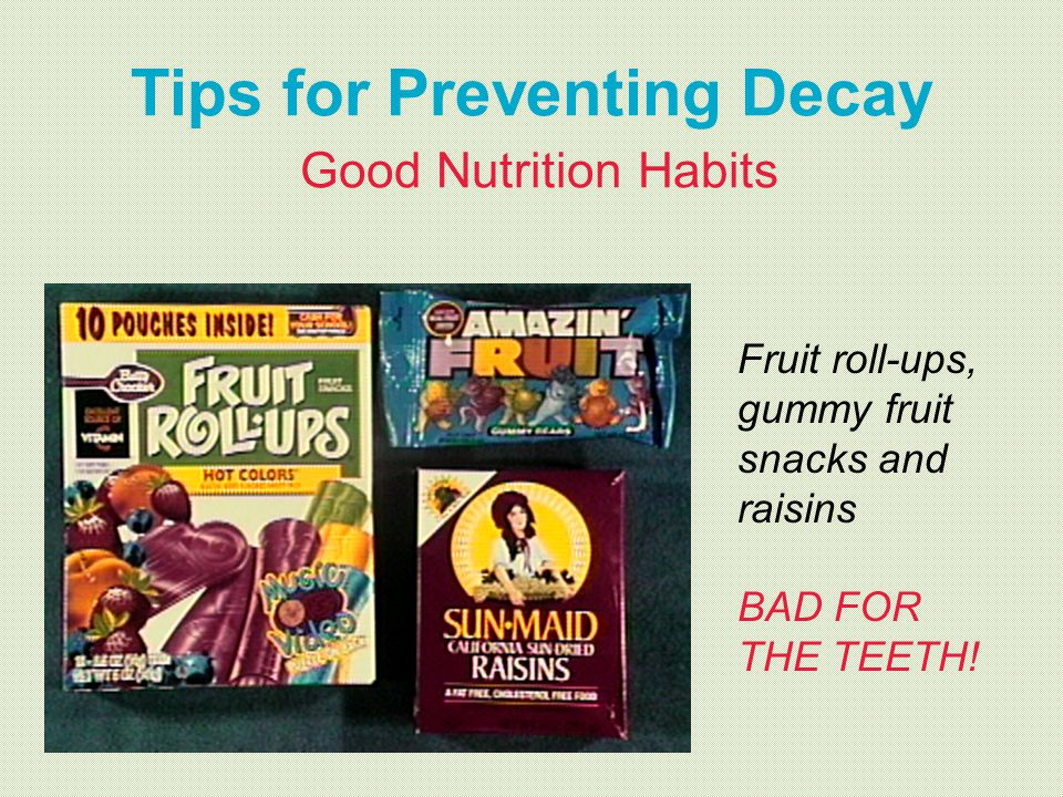 Tips for Preventing Decay Good Nutrition Habits