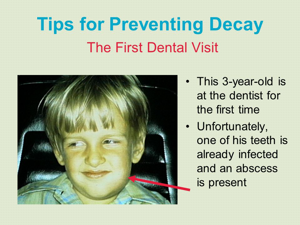 Tips for Preventing Decay The First Dental Visit