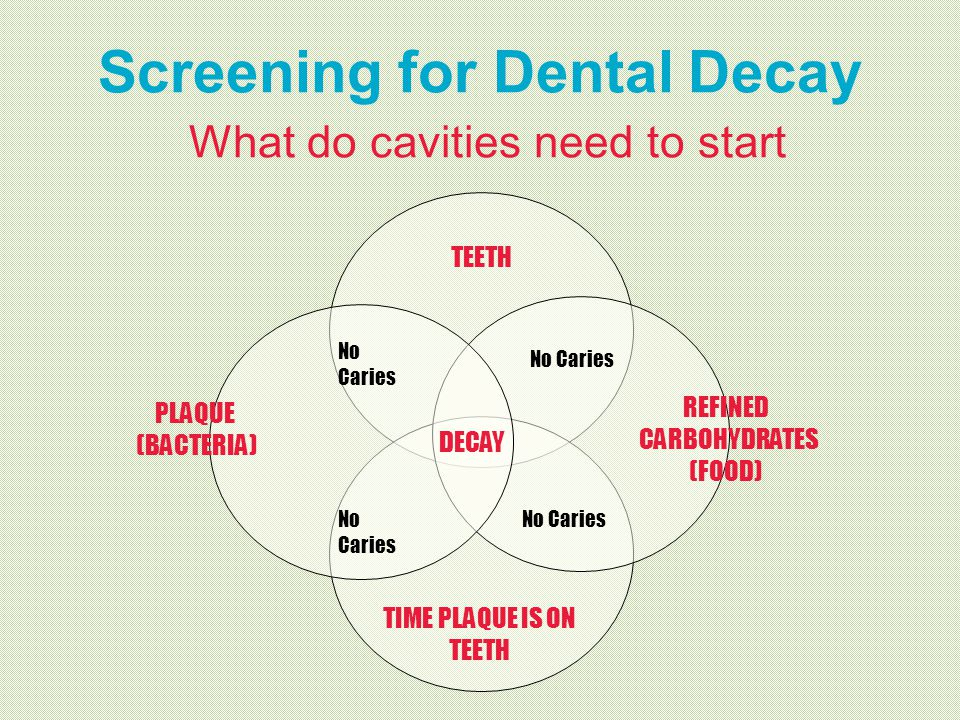 Screening for Dental Decay What do cavities need to start
