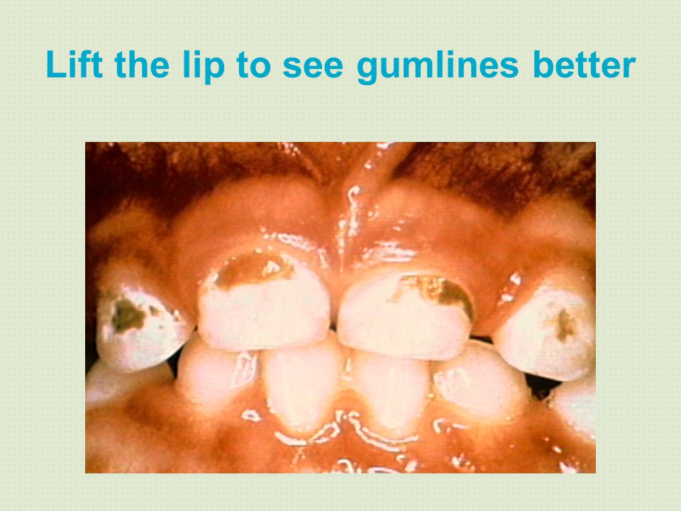 Lift the lip to see gumlines better