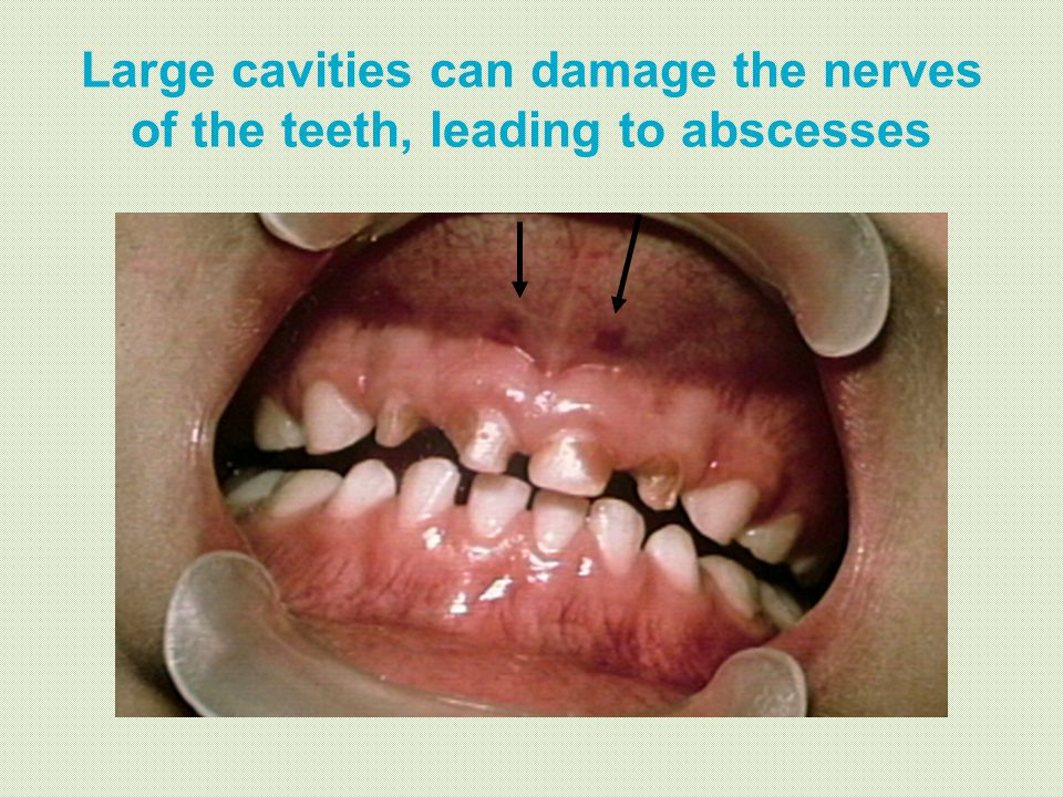 Large cavities can damage the nerves of the teeth, leading to abscesses