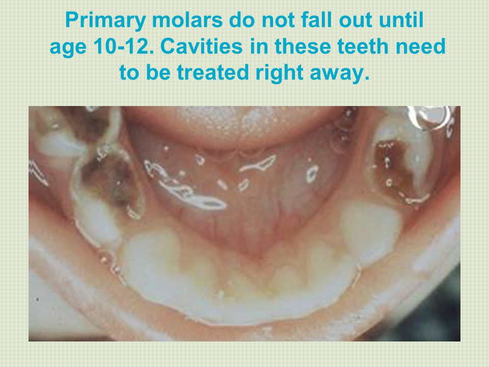 Primary molars do not fall out until age 10-12