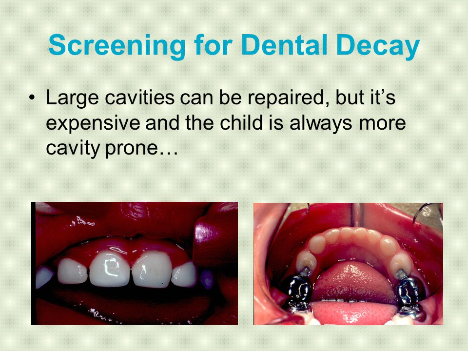 Screening for Dental Decay