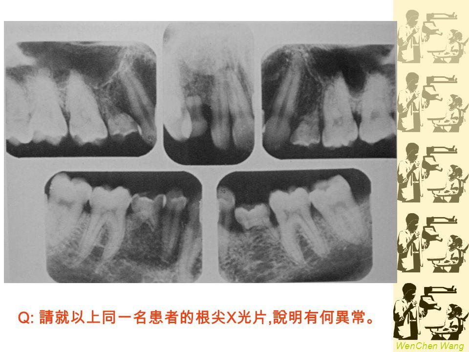 Q: 請就以上同一名患者的根尖X光片,說明有何異常。