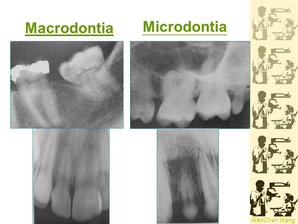 Macrodontia Microdontia
