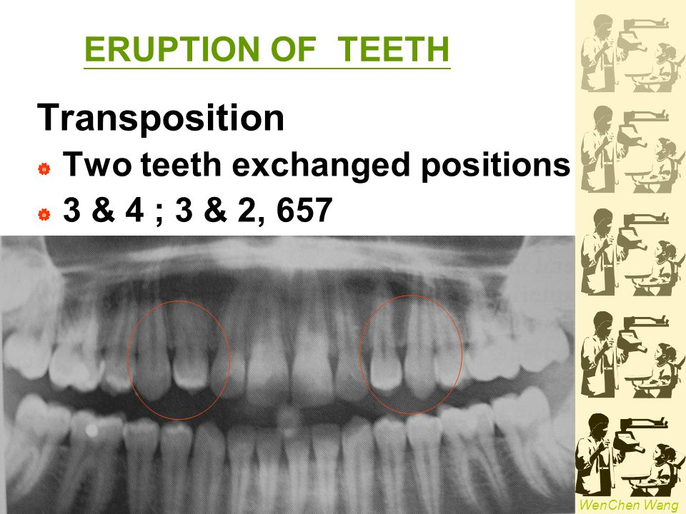 Transposition ERUPTION OF TEETH Two teeth exchanged positions