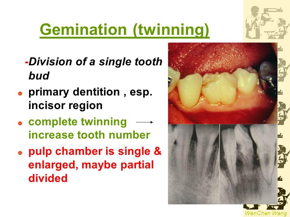 Gemination (twinning)