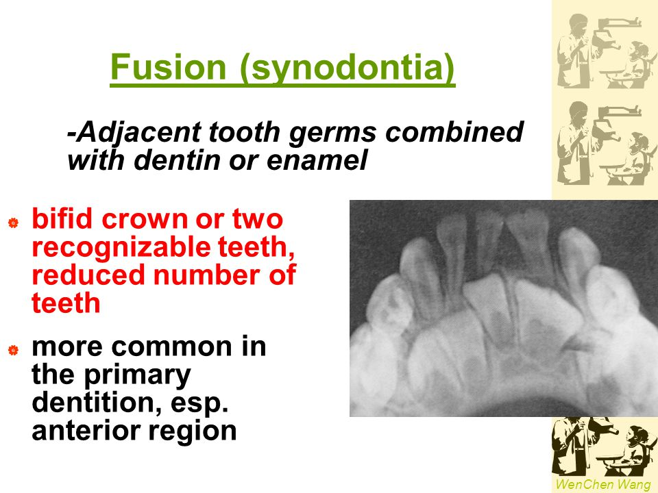 Fusion (synodontia) -Adjacent tooth germs combined with dentin or enamel. bifid crown or two recognizable teeth, reduced number of teeth.