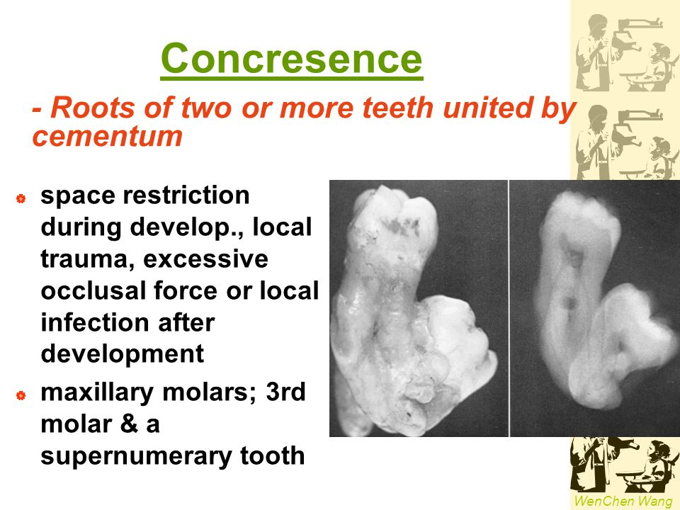 Concresence - Roots of two or more teeth united by cementum