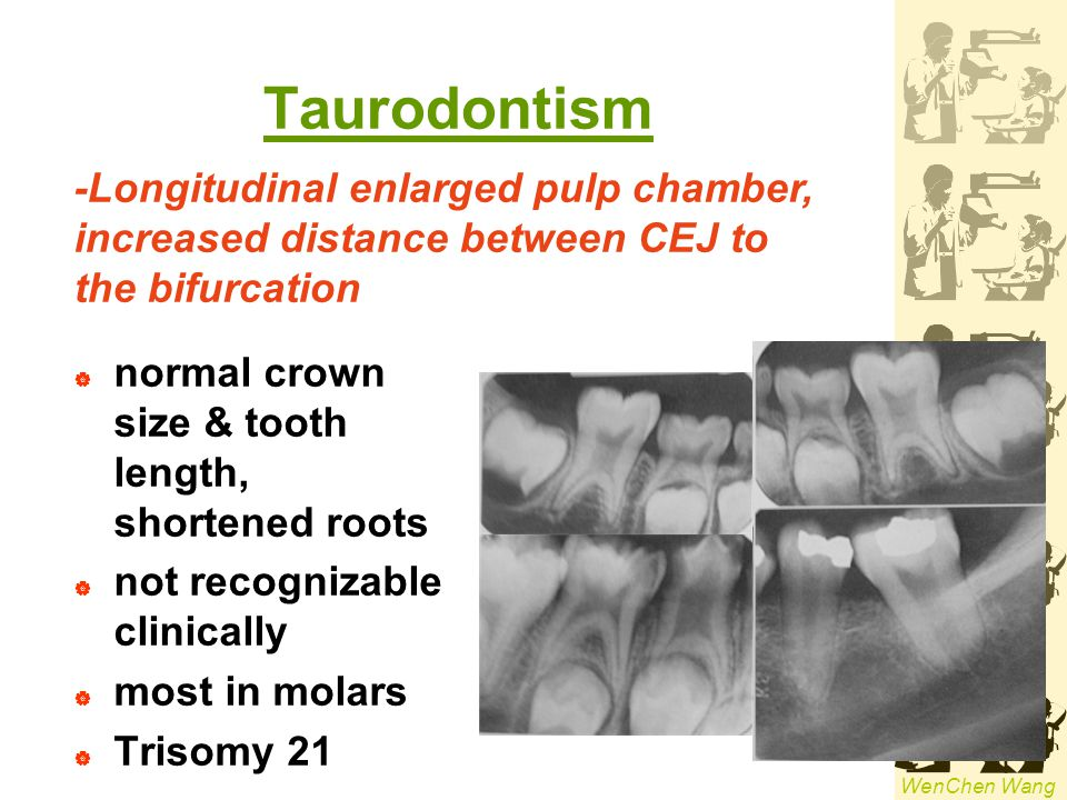 Taurodontism -Longitudinal enlarged pulp chamber,