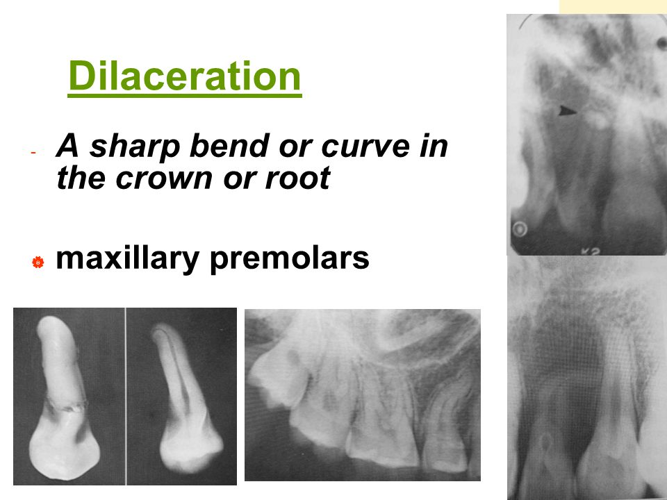 Dilaceration A sharp bend or curve in the crown or root