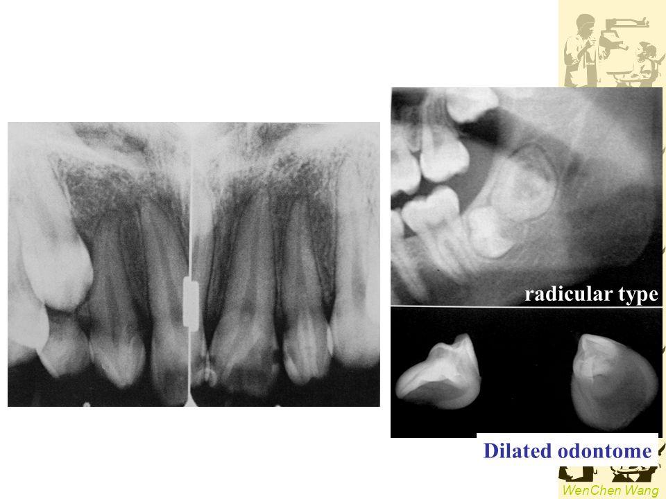 radicular type Dilated odontome