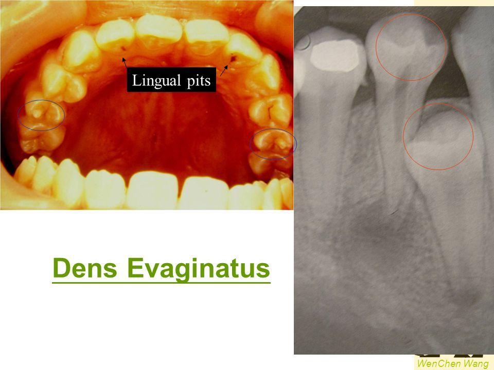Lingual pits Dens Evaginatus