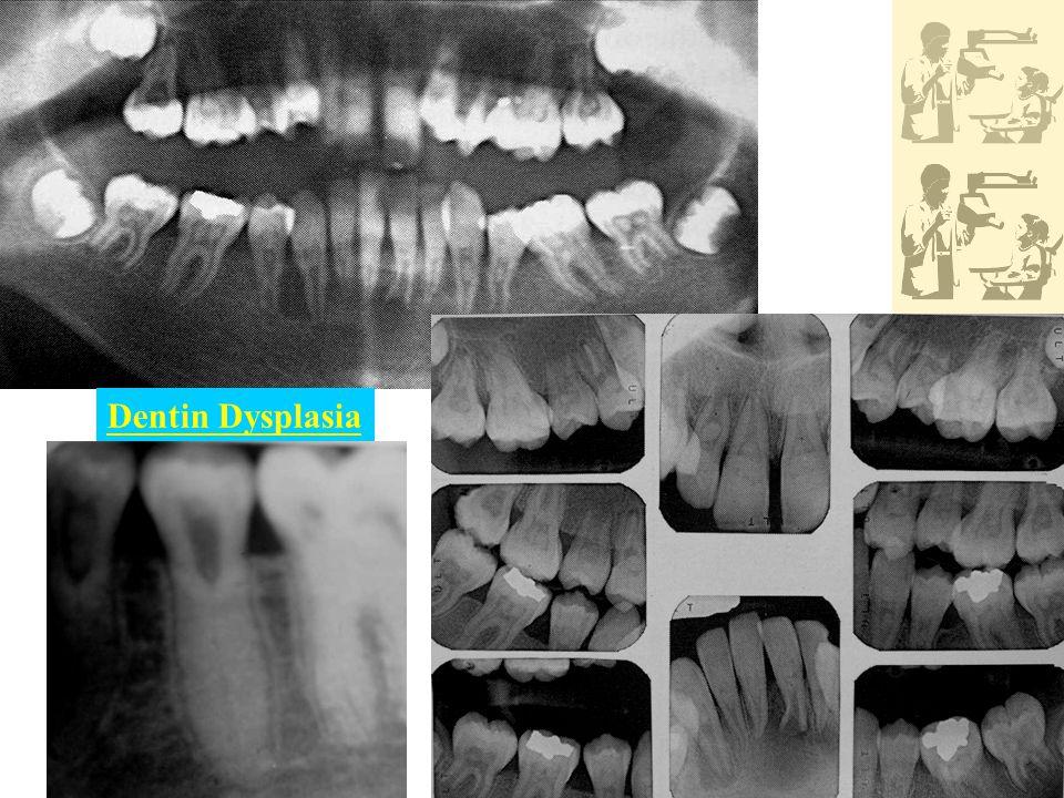 Dentin Dysplasia
